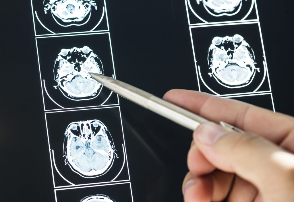Person pointing to brain scans with a pen